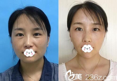 天津薇什医疗美容门诊部注射瘦脸除皱瘦脸针案例效果图