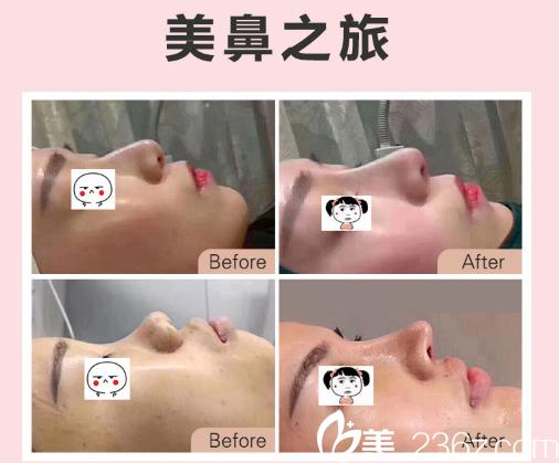 东莞南城西妃肖强做的鼻综合隆鼻案例