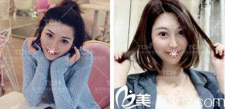森女士在重庆时光范眉清那儿做完纳米祛眼袋半年后的恢复效果。