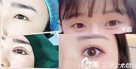 在蚌埠涵韩整形做全切双眼皮+开眼角眼综合案例