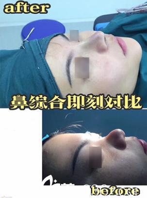涵韩整形院长张哲达拉斯网红鼻综合案例