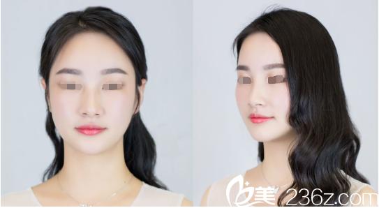 下颚短缩+印第安纹,居然在南京艺星填充了几支艾莉薇玻尿酸就都改善了