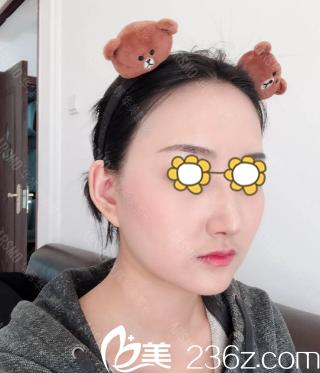分享去年国庆我在长沙华韩华美整形医院做ARSMO软骨隆鼻的经历及术后60天恢复效果