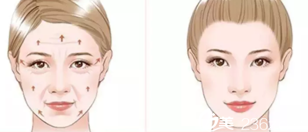 面部埋线提升效果示意图