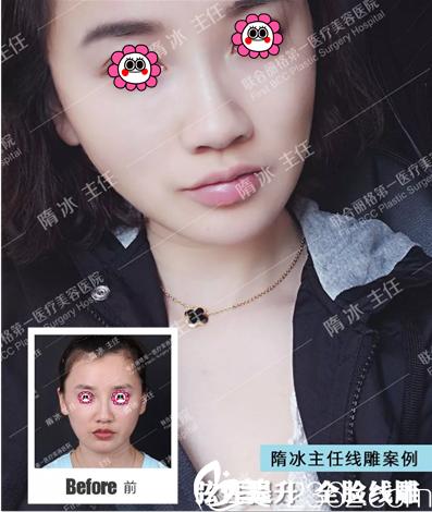 北京联合丽格弦性提升全脸线雕案例