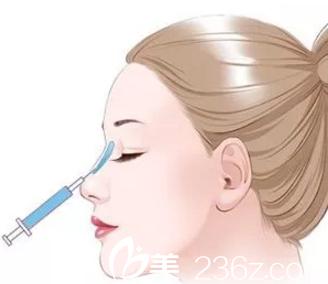 注射隆鼻能维持多久?