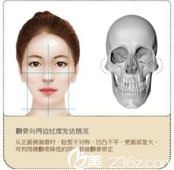 上海星璨国际整形医院张勍峰颌面整形