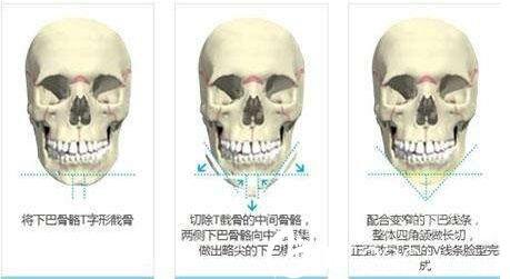 上海星璨国际整形医院张勍峰颧骨整形