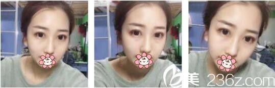 韩国AURORA整形外科医院李志永鼻综合真人案例术后十八天