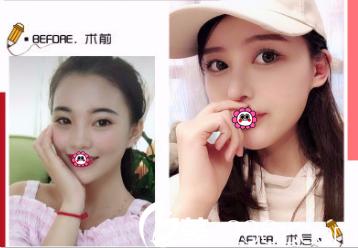 北京玲珑梵宫整形混血全肋鼻综合案例