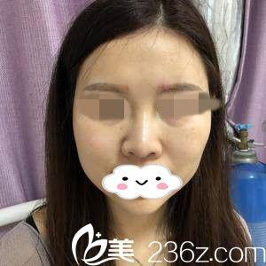 哈尔滨名人医疗美容门诊部黄华术前照片1
