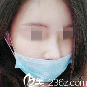 鼻修复一周后的效果