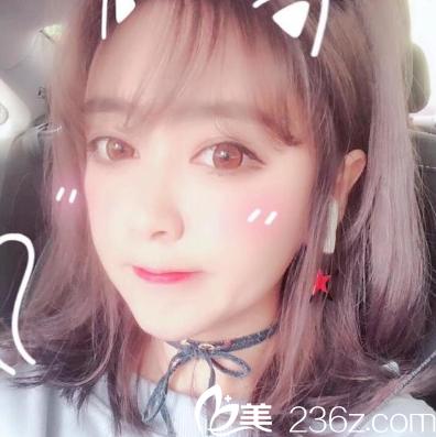 深圳蒳美迩医疗美容门诊部黄海彬术后照片1