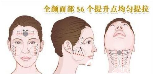 韩国奥拉克皮肤科整外科柳民熙面部提升位置