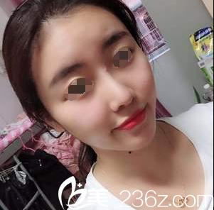 连云港徐强整形医院徐强术后照片1