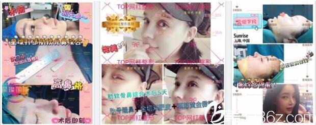 上海星璨国际整形医院鼻部整形真人案例