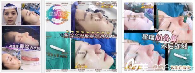 上海星璨国际整形医院鼻部整形真人案例2