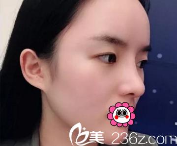 长沙爱思特医疗美容医院吴蒙术后照片1
