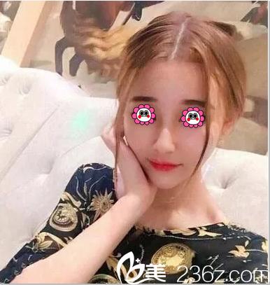 北京济诚仁注射瘦脸案例