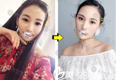 重庆华美潘宝华玻尿酸隆鼻案例