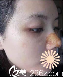 韩国枓翰整形鼻综合术后5天照