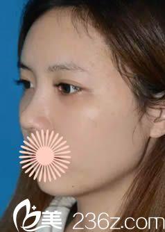韩国申枓翰医生做面部脂肪填充和鼻综合术后15天照