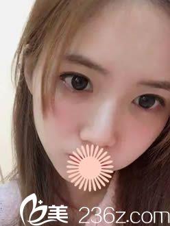 韩国枓翰整形面部填充术后30天照