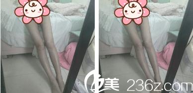 好激动!在成都军大找李发展做大腿吸脂3个月腿围少了9CM