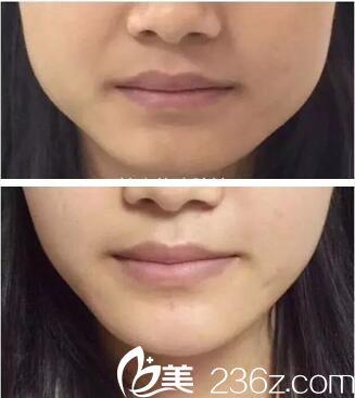 顧客到張朝蕾打了瘦臉針之后效果如何呢?