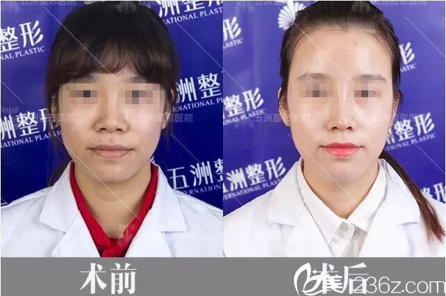 不满意玻尿酸隆鼻效果的武汉五洲整形员工做鼻综合15天恢复期及术后效果大公开