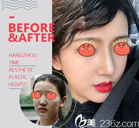 杭州时光整形张常院长鼻综合案例