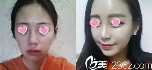 自从在九江华美做了自体脂肪填充全脸手术后少女感十足