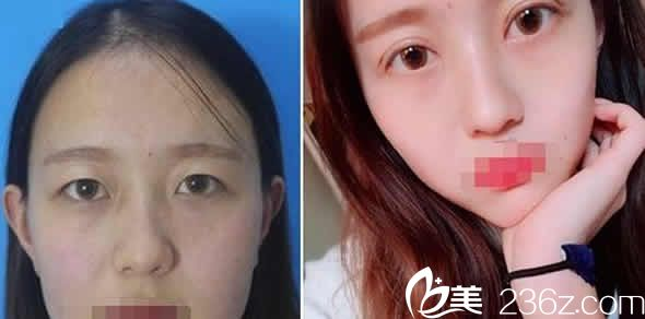 太原天使名源医疗美容整形双眼皮案例效果图