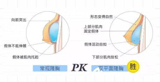 常规隆胸和内窥镜双平面隆胸对比