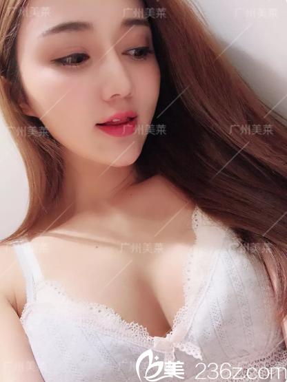 广州美莱李高峰内窥镜隆胸术后一周效果图