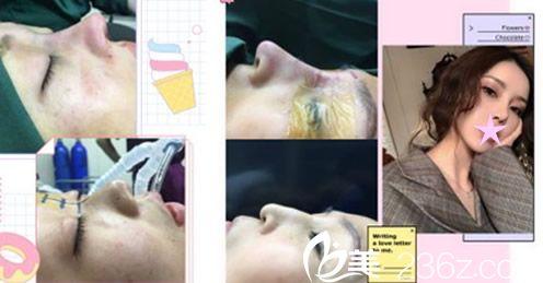 艾尚美整形隆鼻失败修复案例