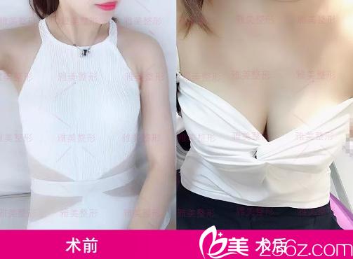 长沙雅美隆胸效果怎么样?看我找肖征刚做的娜绮丽假体隆胸术后60天恢复效果