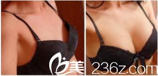 北京凯润婷史三八脂肪丰胸案例