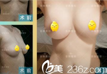 北京京韩脂肪丰胸案例