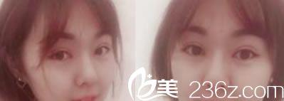 我来告诉你临安芘丽芙赵书祺做双眼皮和隆鼻手术效果怎么样