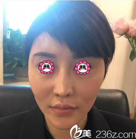 冲北京玲珑梵宫人气网红好口碑我花大几万做了面部脂肪填充和鼻修复