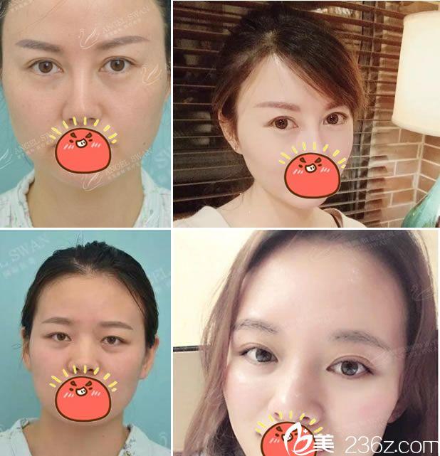 杭州智美颜和双眼皮和美肤案例