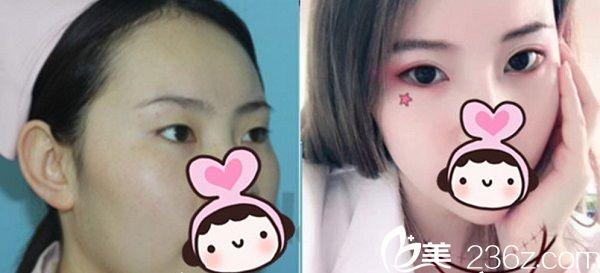 西宁韩美双眼皮手术案例