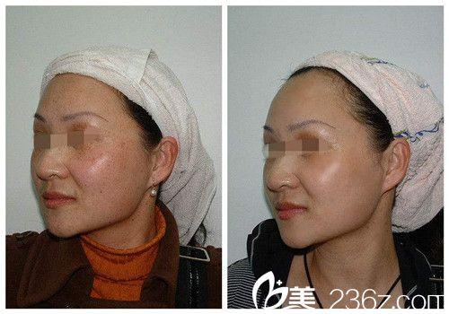 光子嫩肤具有祛色斑作用