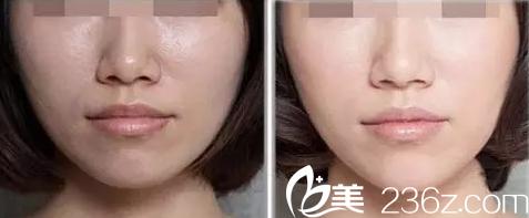 光子嫩肤祛除面部暗黄案例