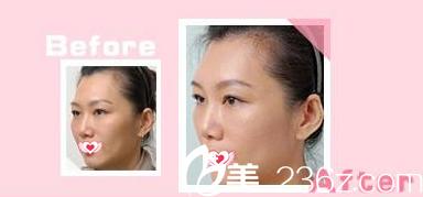 光子嫩肤抗衰老作用