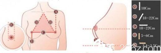 自体脂肪隆胸优势