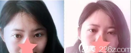 哈尔滨吴谦医生切开双眼皮和开眼角真人案例以及恢复过程分享