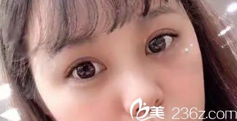 找杭州智美颜和刘颖做了双眼皮后,眼睛一步一步变成自己喜欢的样子了