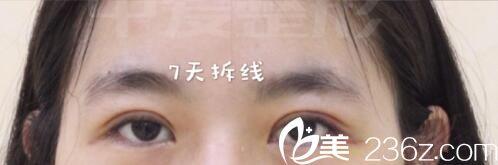 纯分享宜昌中爱李登进双眼皮案例 7天拆线后无神单眼皮秒变炯炯大眼